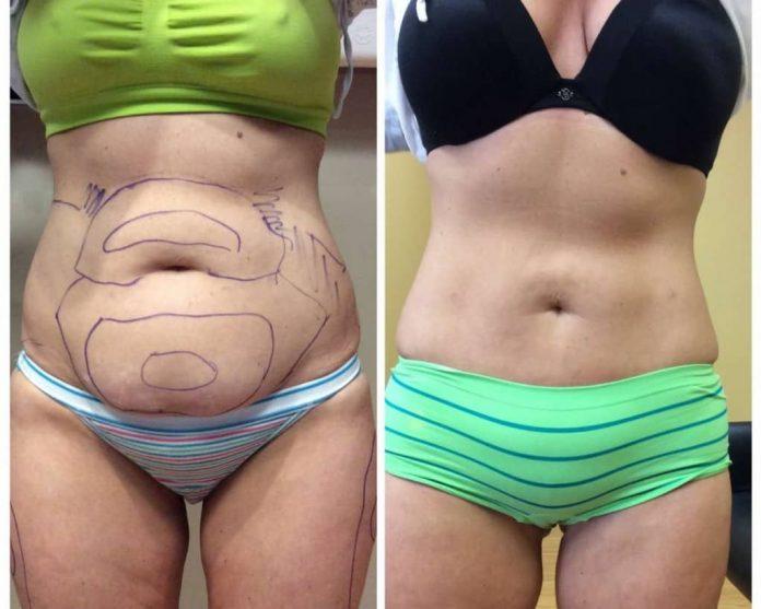 Liposuction Basics