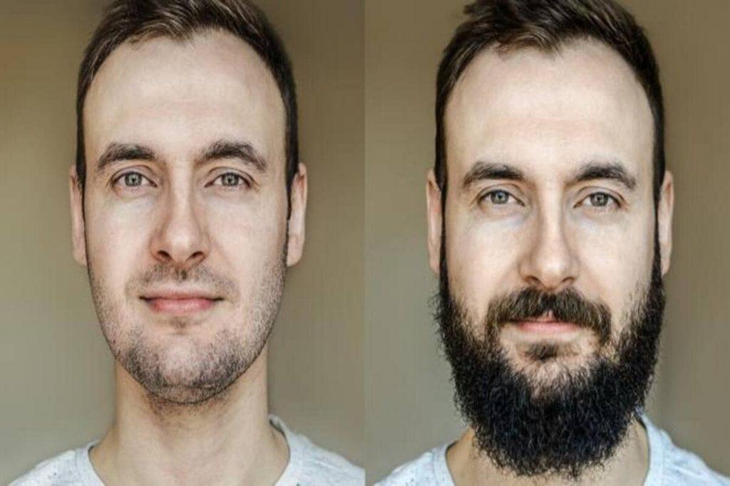Facial Hair Transplant Surgery